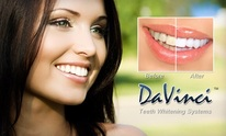 DaVinci At Lavish Beauty Salon: Teeth Whitening