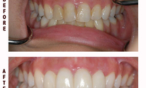 Zakhor Dental Group: Teeth Whitening