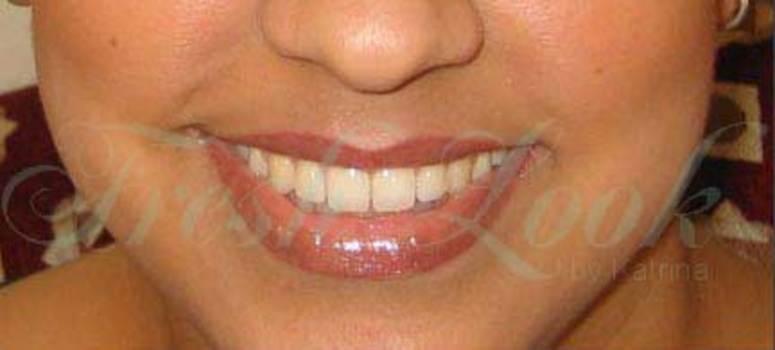 Lips_a_a