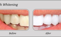 Radiant Smiles Dental Care: Teeth Whitening