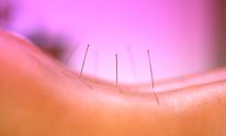 Pura Healing: Acupuncture