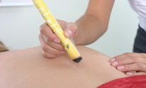 Central Baldwin Chiropractic Center: Acupuncture