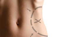 Skin Rejuvenation Clinique: Body Contouring