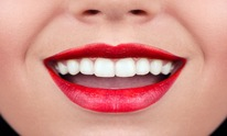 Sarrell Dental Center: Teeth Whitening