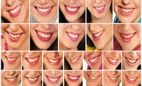 Reeves Tesa DDS: Teeth Whitening