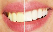 SPAtacular Skincare Health Wellness Center: Teeth Whitening