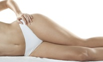 Body Sculpt Wraps: Laser Hair Removal