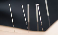 Acupuncture_a