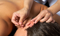GMC Acupuncture: Acupuncture