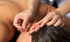 Acupuncture b