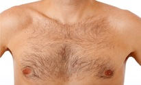Electrolysis Clinic: Waxing