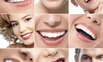 The Dental Health Center: Teeth Whitening