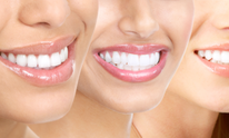 Soft Touch Dental: Teeth Whitening