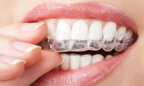 McCartha Charles D Dr DMD: Teeth Whitening