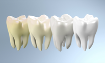 Tampa Aesthetic Dental: Teeth Whitening