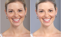 Johnson Orthodontics: Teeth Whitening