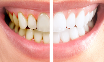 Black Narvel DMD: Teeth Whitening