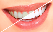 Family Dental Clinic: Teeth Whitening