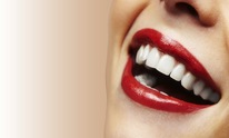 Barron Marvin L Dr: Teeth Whitening