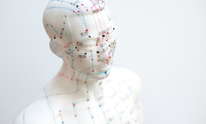 Metta Acupuncture: Acupuncture