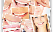Smiles and Laughs Teeth Whitening: Body Wraps