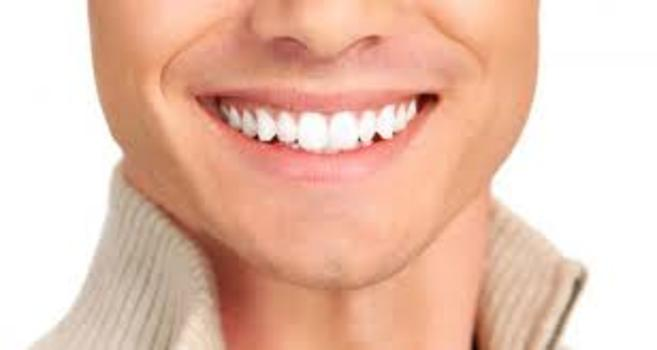Teeth Whitening Irving tx Teeth Whitening