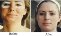 Finer Skin Institute: Facial