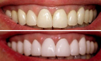 St George Dental Clinic: Teeth Whitening