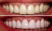 St George Dental Clinic: Teeth Whitening