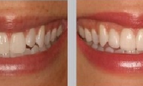 Toluca Dental Care: Teeth Whitening