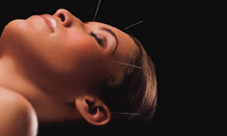 Crystal Fitwell: Acupuncture