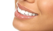 The SmileMakers: Teeth Whitening