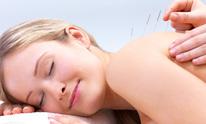 Chi Acupuncture: Acupuncture
