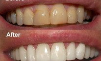 Sempre-Bella: Teeth Whitening