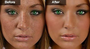 """""""Struggling with Dark spots& Pimples? See how strange asian cream can Help you get rid of It!"""