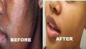 """Amazing Japanese """"Horse Oil"""" cream that clears up shameful black spots, kills pimples & removes embarrassing wrinkles!"""