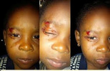 Photos: Dad of 2 year old girl expelled by school after her parents reported injury on her face, writes to Lagos Govt