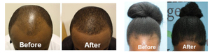 Here is the 2 in 1 hair growth solution I and over 37 others used to grow our hair faster and how you can get it to