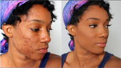Struggling with Dark spots & Stretch marks? Here is the 100% miracle solution I and 32 others used to cure/get rid of it and how you can get it too