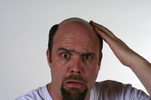 Do you have bald hair? Here are 3 ways to cure it…fast!