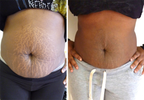 Scientist discovers a miracle medicinal plant that erases Stretch marks (can be found in your backyard)