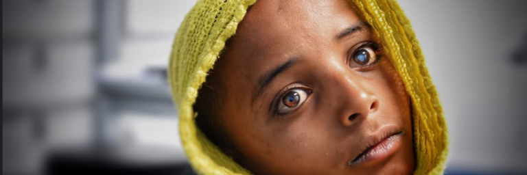 Ethiopia Feh Young Patient