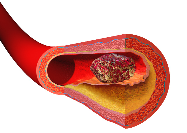 A blood clot blocking a blood vessel. Source Wikipedia