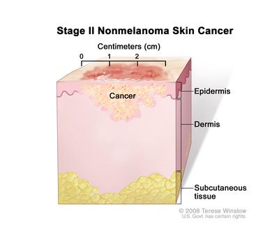 Stages Of Skin Cancer Navigating Care