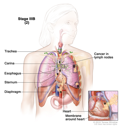 Stages Of Non Small Cell Lung Cancer Navigating Care