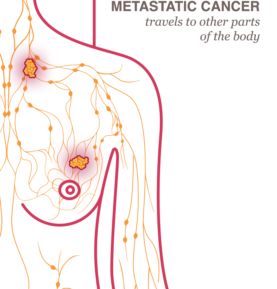 Metastatic Cancer