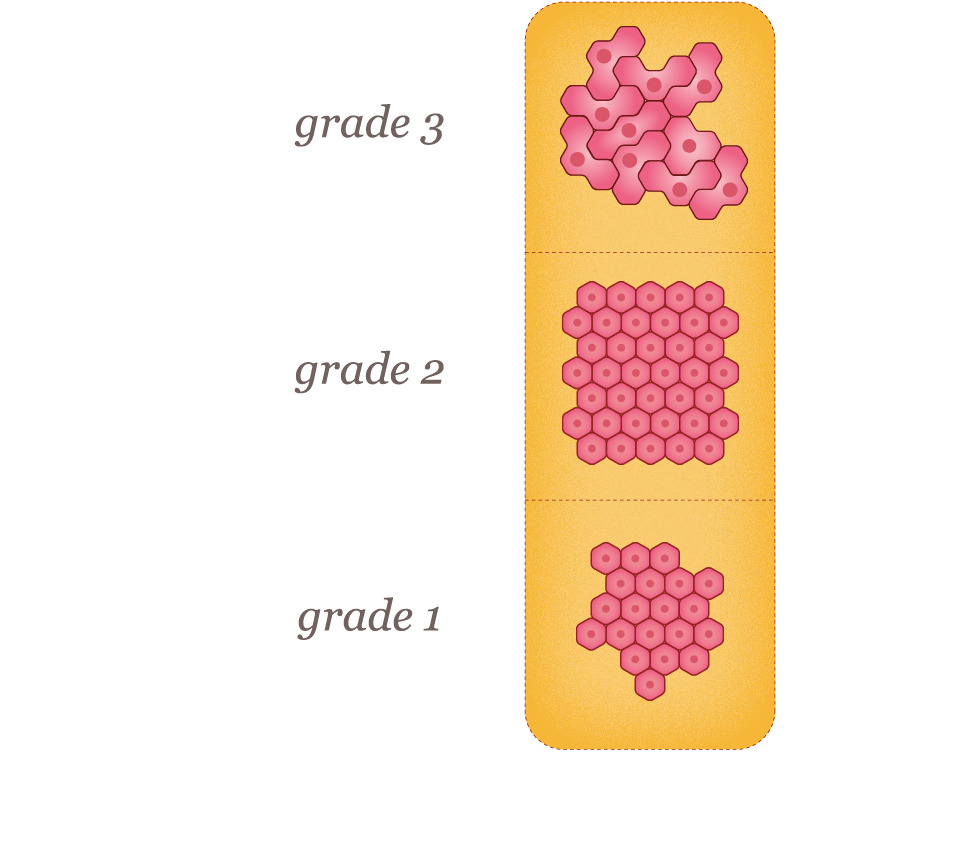Breast Cancer Tumor Grades