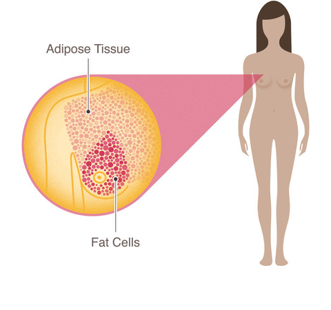 breast cancer anatomy adipose tissue