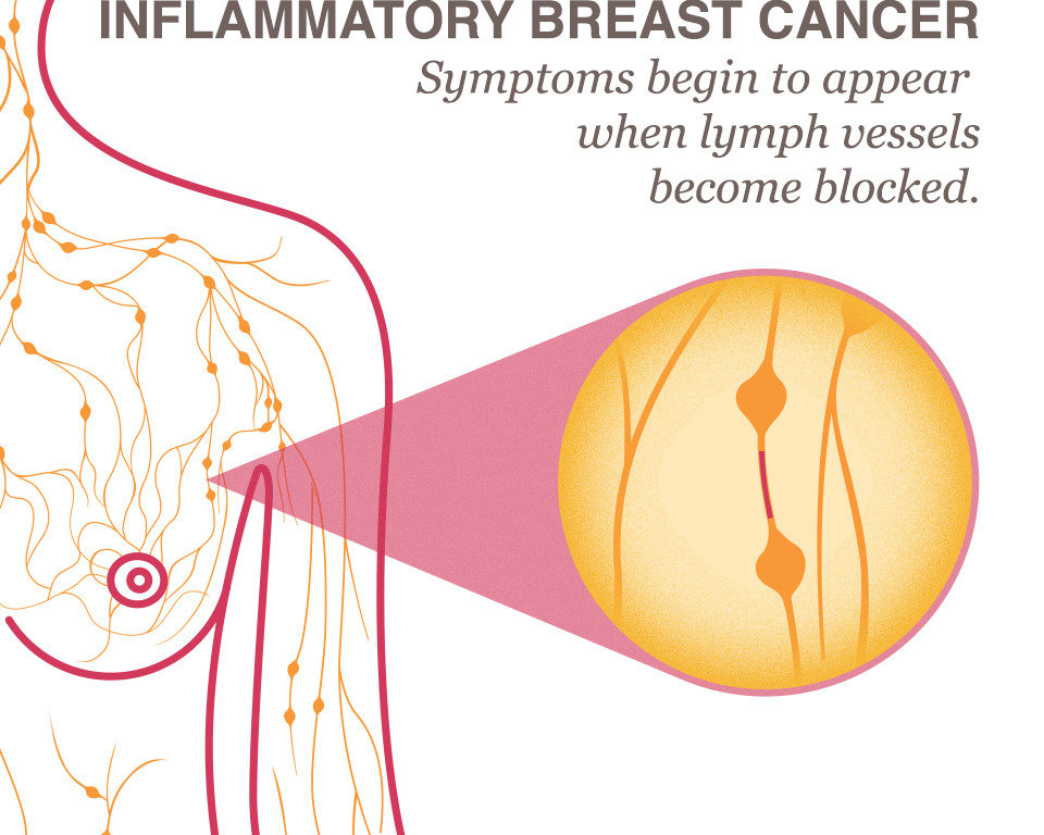 Ibc Inflammatory Breast Cancer Operation18 Truckers