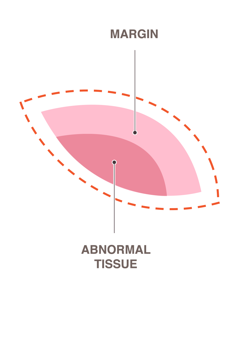 margin and abnormal tissue.